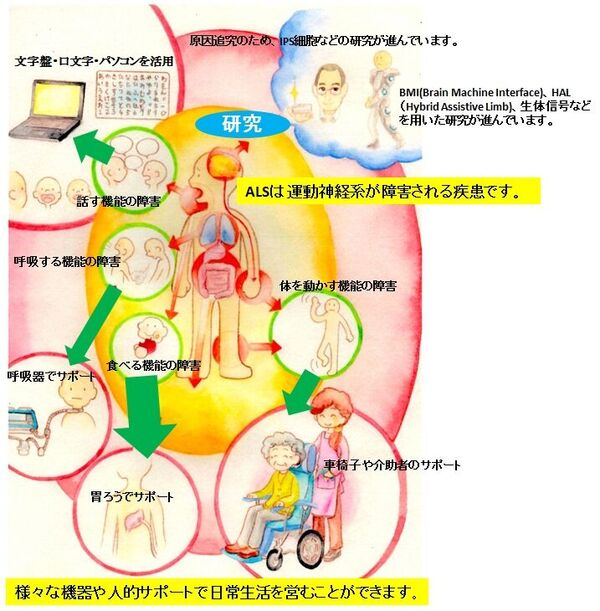 ALSはどんな病気?